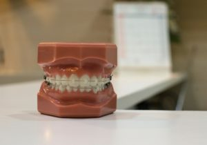 Pity, that affordable braces for adults remarkable
